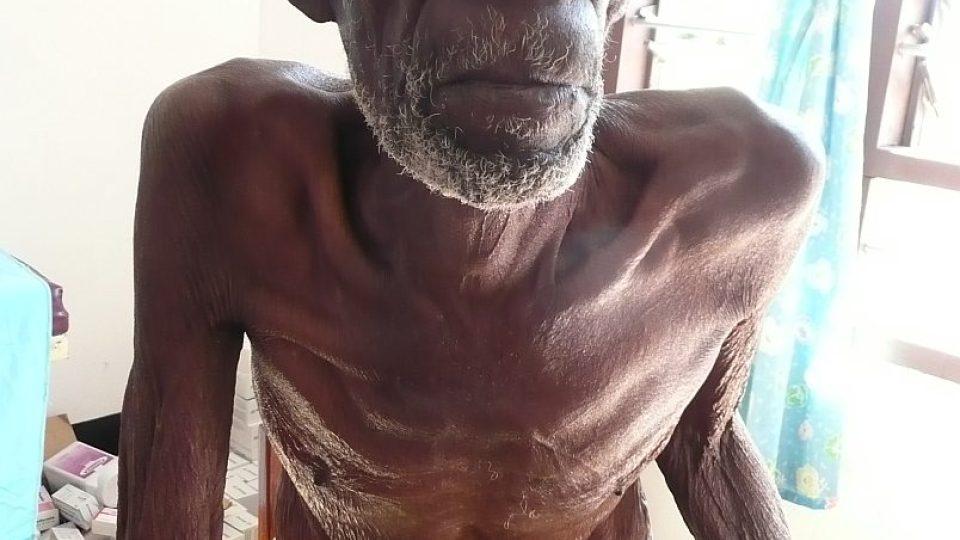 Afrika - podvýživený senior