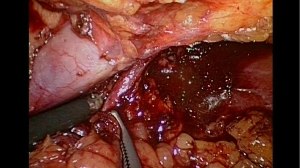 Preparace renální arterie