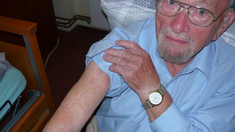Ján Bugel ukazuje zranění z SNP