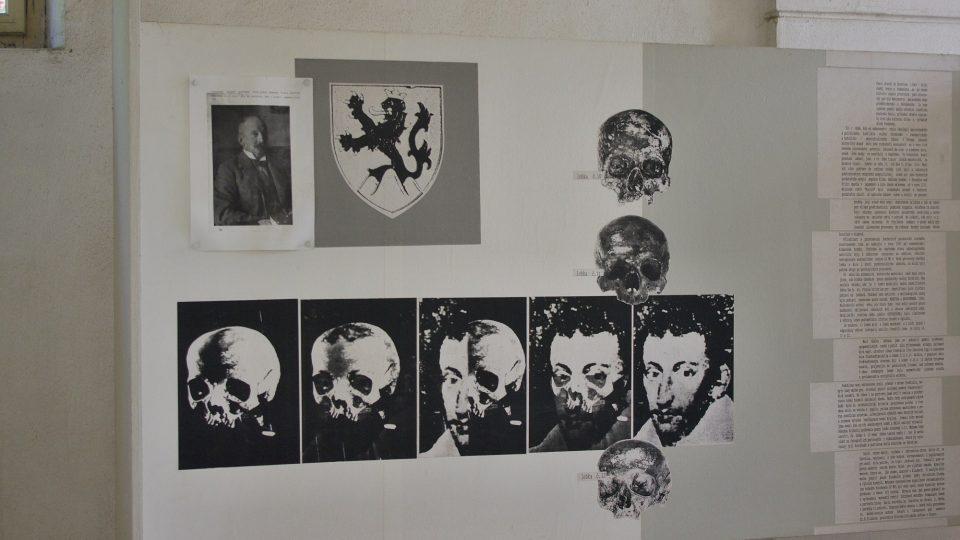 Dokumentace z výzkumu lebky Karla staršího ze Žerotína