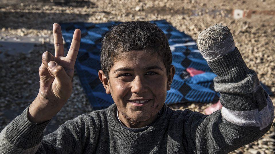 Syrský chlapec jménem Siyar, který byl zraněn při minometném útoku