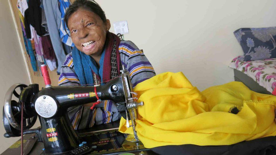 Indická dívka, které byla brutálně zohavena kyselinou; nesedí doma ale snaží se zapojit do života
