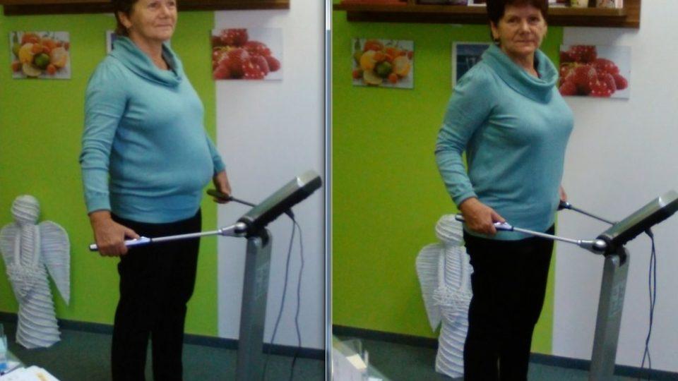 Paní Jana v září a říjnu 2015, úbytek tuku po měsíci je vidět na první pohled