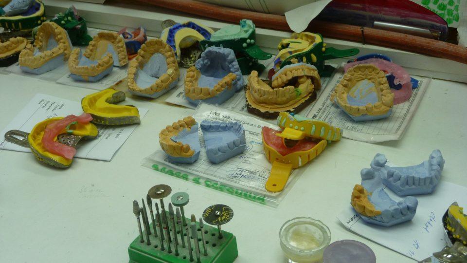 Zubní korunky a náhrady jsou umělecká díla