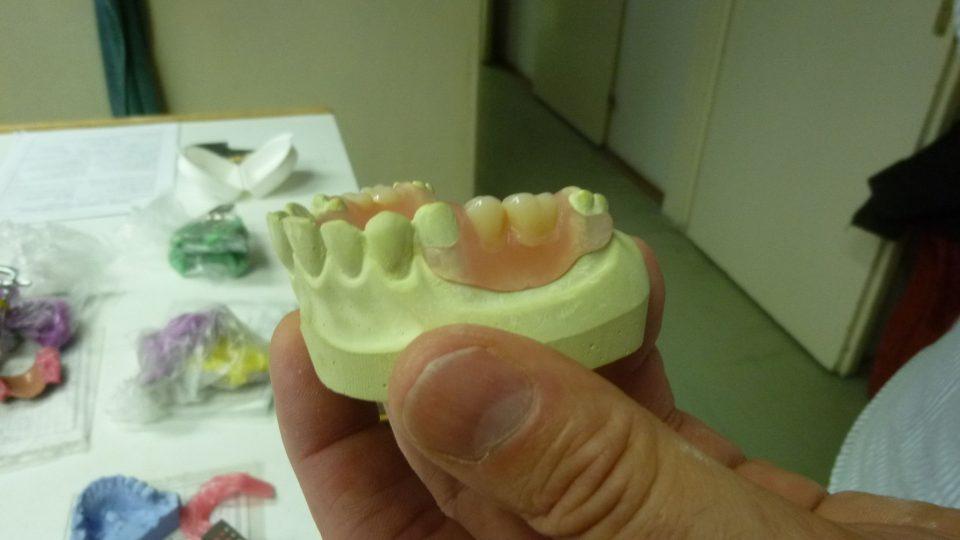 Zubní náhrady jsou umělecká díla