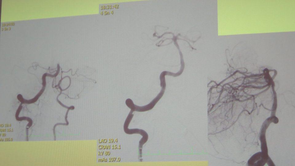 Snímky cév