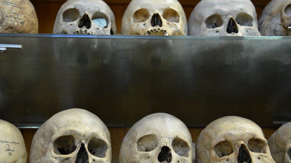 Objevíte tu sbírku trepanovaných i deformovaných lebek