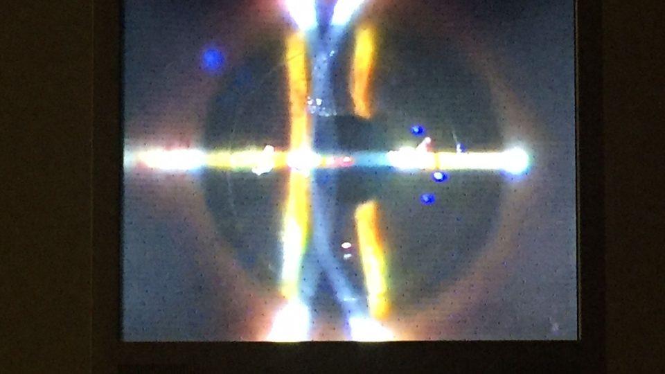 Laser s několika obrazovkami a joystickem. I tak dnes vypadají operace očních chirurgů
