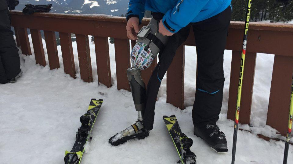Aleš Bouda předvádí, jak funguje jeho bionické koleno