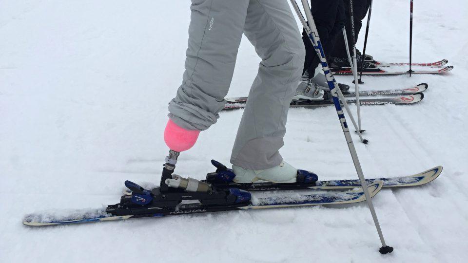Protéza umožňuje Tereze Francové lyžovat téměř jako před amputací